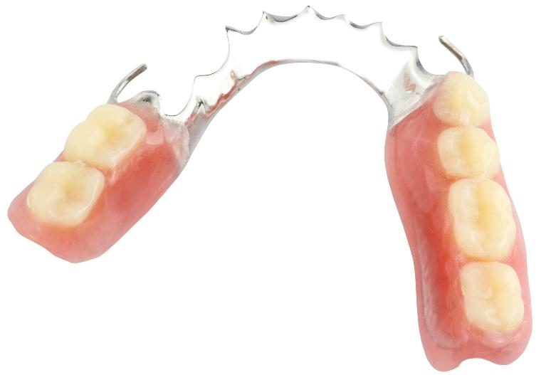 Partial Denture | Dentist in Summerville SC