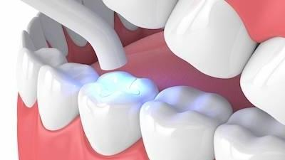 Close up of tooth enamel l Azalea Dental Summerville SC